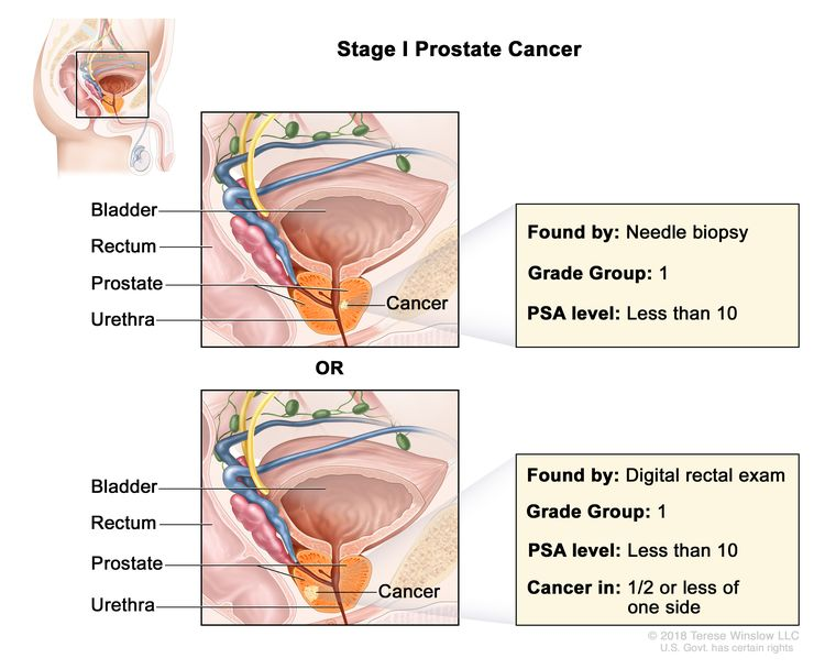 Four Common Prostate Cancer Treatments